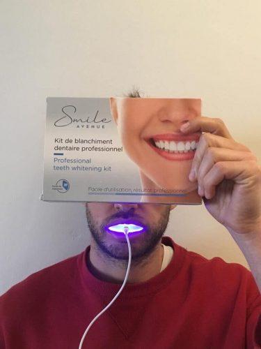 Kit di Sbiancamento Denti Smile Avenue photo review