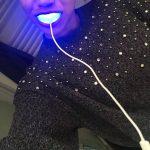 Kit de branqueamento dentário da Smile Avenue photo review